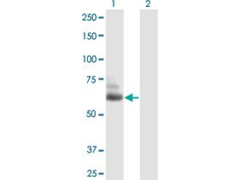 Image no. 1 for anti-Tubulin tyrosine Ligase-Like Family, Member 6 (TTLL6) (AA 1-569) antibody (ABIN531545)