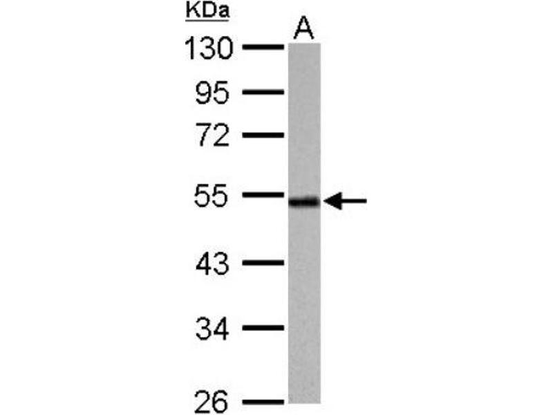 Western Blotting (WB) image for anti-Cyclin A2 (CCNA2) (Center) antibody (ABIN441337)