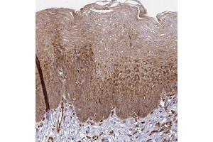 Immunohistochemistry (Paraffin-embedded Sections) (IHC (p)) image for anti-WAS Protein Family, Member 2 (WASF2) antibody (ABIN4365925)