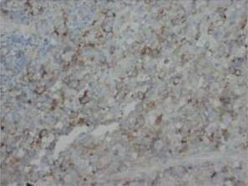 Immunohistochemistry (Paraffin-embedded Sections) (IHC (p)) image for anti-FGF4 antibody (Fibroblast Growth Factor 4) (C-Term) (ABIN1107217)