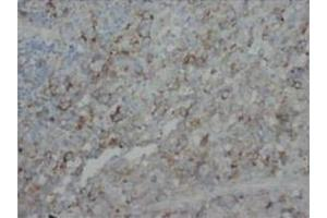 Immunohistochemistry (Paraffin-embedded Sections) (IHC (p)) image for anti-Fibroblast Growth Factor 4 (FGF4) (C-Term) antibody (ABIN1107217)