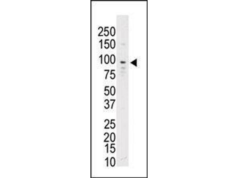 Western Blotting (WB) image for anti-TYRO3 antibody (TYRO3 Protein Tyrosine Kinase) (AA 842-873) (ABIN392054)