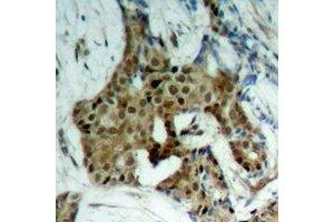 Immunohistochemistry (IHC) image for anti-Signal Transducer and Activator of Transcription 1, 91kDa (STAT1) (C-Term), (pTyr701) antibody (ABIN2957762)