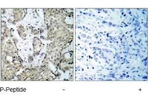 Immunohistochemistry (IHC) image for anti-MAP2K3 antibody (Mitogen-Activated Protein Kinase Kinase 3) (pSer189) (ABIN257414)