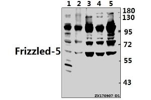Image no. 1 for anti-Frizzled Family Receptor 5 (FZD5) (AA 468-519) antibody (ABIN6712919)