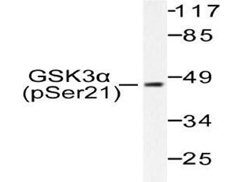 Western Blotting (WB) image for anti-Glycogen Synthase Kinase 3 alpha (GSK3a) (pSer21) antibody (ABIN498788)