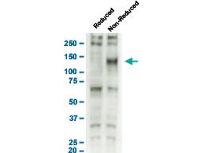 Western Blotting (WB) image for anti-Neurotrophic Tyrosine Kinase, Receptor, Type 1 (NTRK1) antibody (ABIN542637)