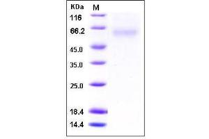 Image no. 1 for Secreted Frizzled-Related Protein 4 (SFRP4) (AA 1-346) (Active) protein (His tag) (ABIN2003298)