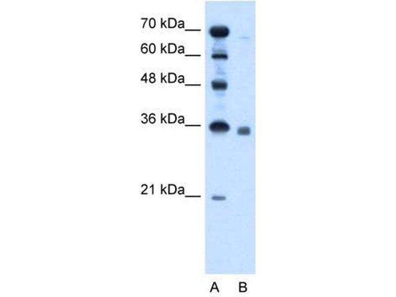 Image no. 2 for anti-Sphingosine-1-Phosphate Phosphatase 2 (SGPP2) (C-Term) antibody (ABIN629768)