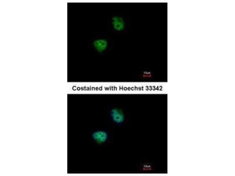 Immunofluorescence (IF) image for anti-Ribosomal Protein S6 Kinase, 70kDa, Polypeptide 2 (RPS6KB2) (Center) antibody (ABIN2855217)