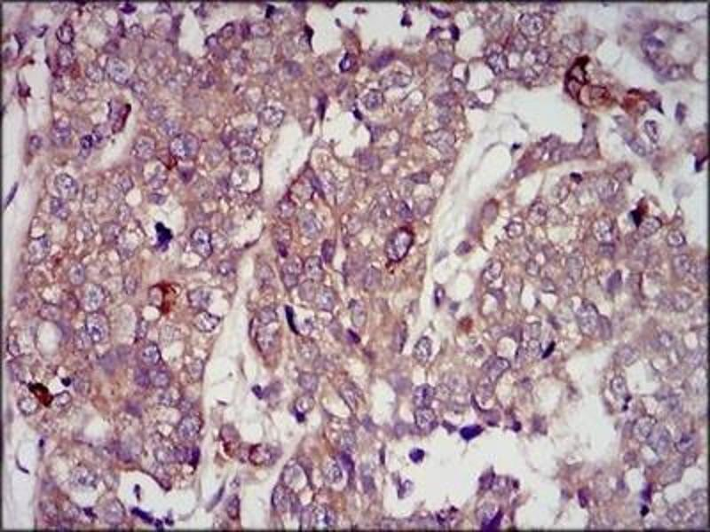 Immunohistochemistry (Paraffin-embedded Sections) (IHC (p)) image for anti-Insulin-Like Growth Factor 2 (IGF2) antibody (ABIN4321597)