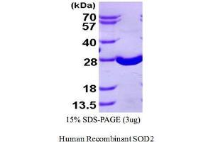 Image no. 1 for Superoxide Dismutase 2, Mitochondrial (SOD2) (Active) protein (His tag) (ABIN1525915)
