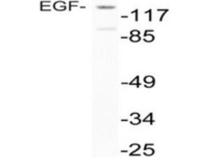 Western Blotting (WB) image for anti-EGF antibody (Epidermal Growth Factor) (Internal Region) (ABIN446990)