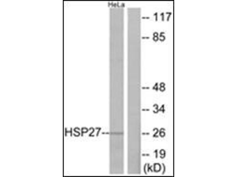 Western Blotting (WB) image for anti-Heat Shock 27kDa Protein 1 (HSPB1) antibody (ABIN5611604)