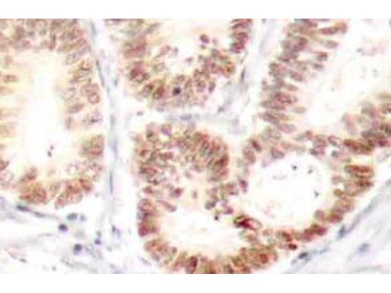 Immunohistochemistry (Paraffin-embedded Sections) (IHC (p)) image for anti-MAPK14 antibody (Mitogen-Activated Protein Kinase 14) (pTyr182) (ABIN498749)
