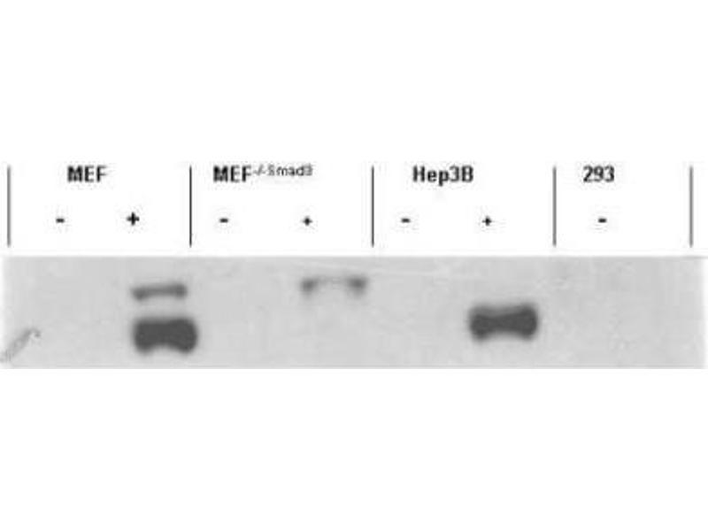 Western Blotting (WB) image for anti-SMAD, Mothers Against DPP Homolog 3 (SMAD3) (pSer423), (pSer425) antibody (ABIN4354683)