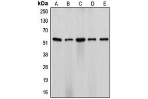 Image no. 3 for anti-Cytochrome P450, Family 17, Subfamily A, Polypeptide 1 (CYP17A1) (Center) antibody (ABIN2705976)