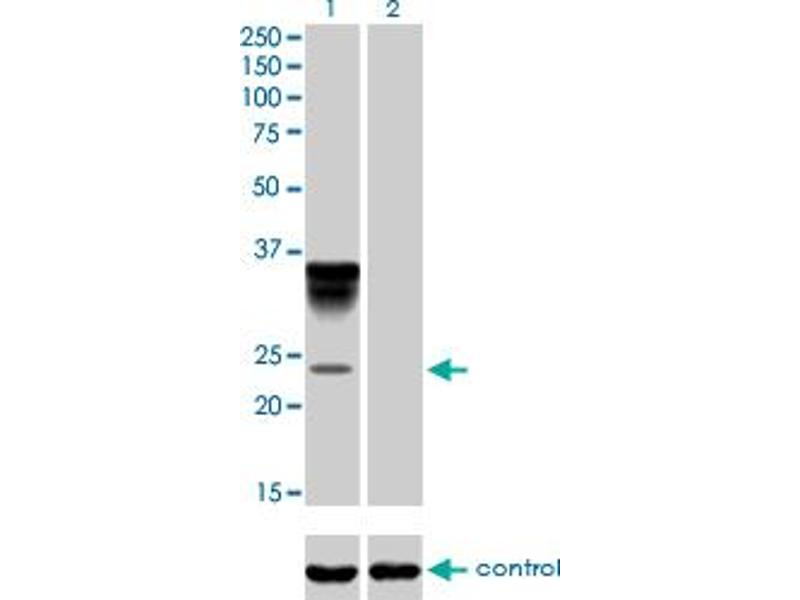 Western Blotting (WB) image for anti-Orosomucoid 1 (ORM1) (AA 18-201), (full length) antibody (ABIN562078)