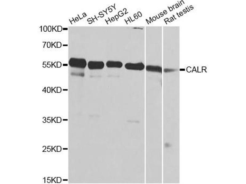 Image no. 1 for anti-Calreticulin (CALR) antibody (ABIN6567010)