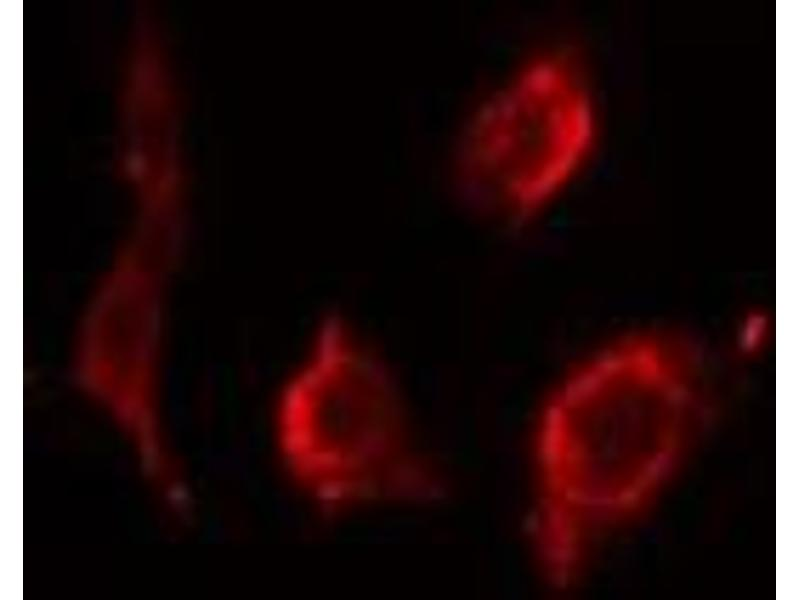 Immunofluorescence (fixed cells) (IF/ICC) image for anti-Protein Phosphatase 2, Regulatory Subunit B, beta (PPP2R2B) antibody (ABIN6259158)