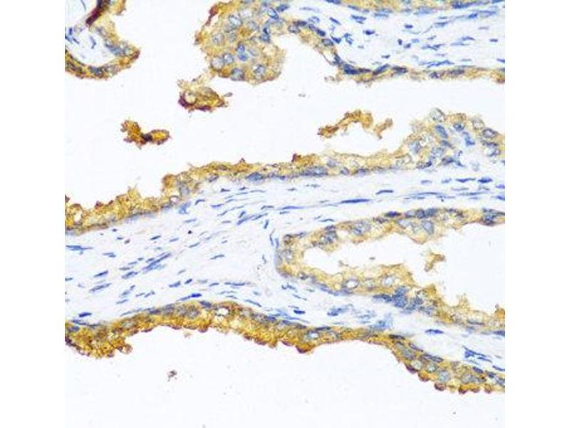 Immunohistochemistry (IHC) image for anti-Carboxypeptidase B2 (Plasma) (CPB2) antibody (ABIN1876835)