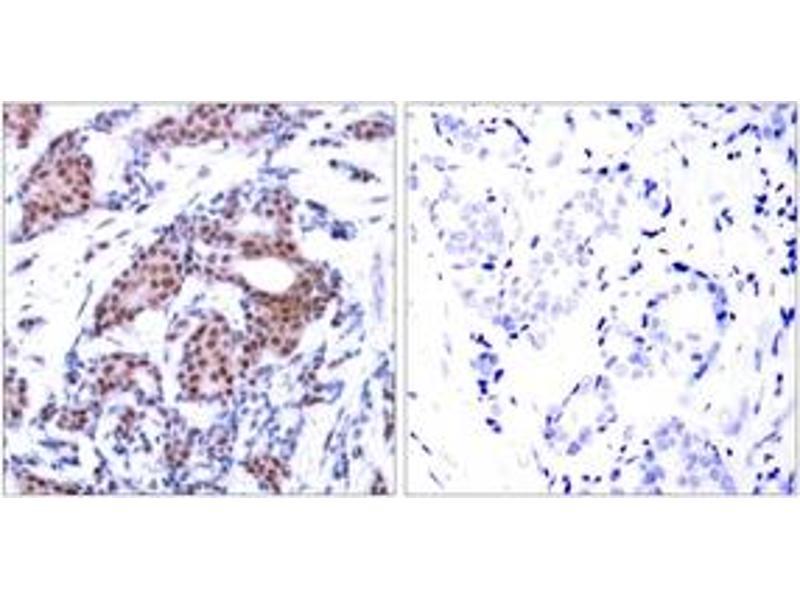 Immunohistochemistry (IHC) image for anti-ELK1 antibody (ELK1, Member of ETS Oncogene Family) (pSer383) (ABIN1531826)
