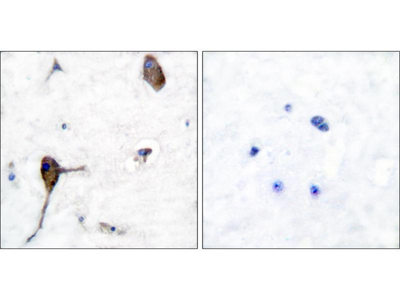 Immunohistochemistry (IHC) image for anti-IL3RA antibody (Interleukin 3 Receptor, alpha (Low Affinity)) (Tyr593) (ABIN2490718)