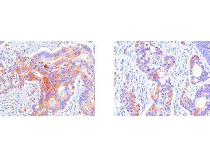 Immunohistochemistry (IHC) image for anti-Heat Shock 27kDa Protein 1 (HSPB1) (AA 1-205), (N-Term) antibody (ABIN317528)