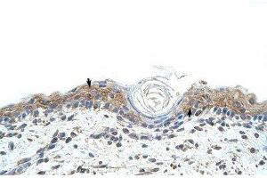 Immunohistochemistry (Paraffin-embedded Sections) (IHC (p)) image for anti-RNA Binding Motif, Single Stranded Interacting Protein 1 (RBMS1) (C-Term) 抗体 (ABIN4349643)