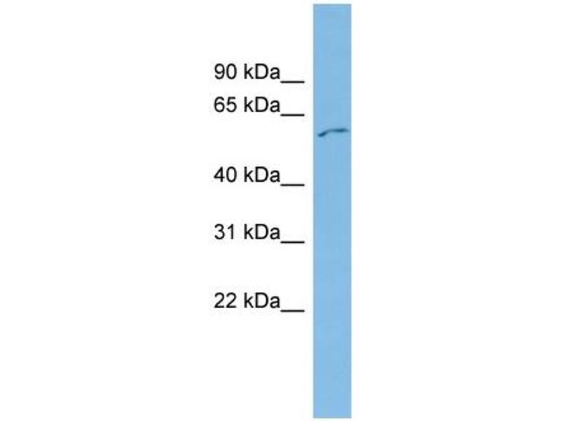 Western Blotting (WB) image for anti-FYN Oncogene Related To SRC, FGR, YES (FYN) (Middle Region) antibody (ABIN2786269)