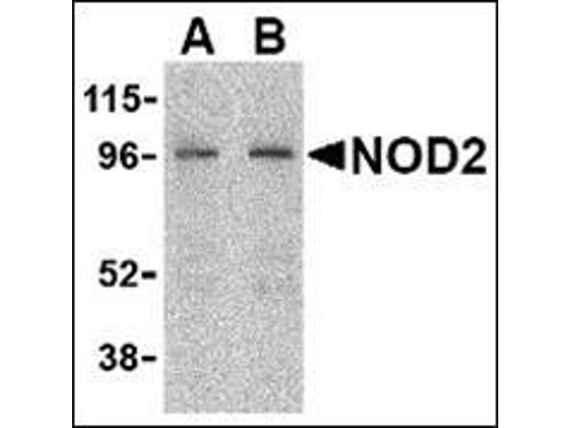 Western Blotting (WB) image for anti-Nucleotide-Binding Oligomerization Domain Containing 2 (NOD2) (C-Term) antibody (ABIN500365)