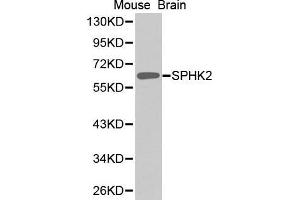 Image no. 1 for anti-Sphingosine Kinase 2 (SPHK2) antibody (ABIN1682869)
