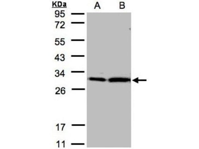 Western Blotting (WB) image for anti-tyrosine 3-Monooxygenase/tryptophan 5-Monooxygenase Activation Protein, zeta Polypeptide (YWHAZ) (Center) antibody (ABIN441332)