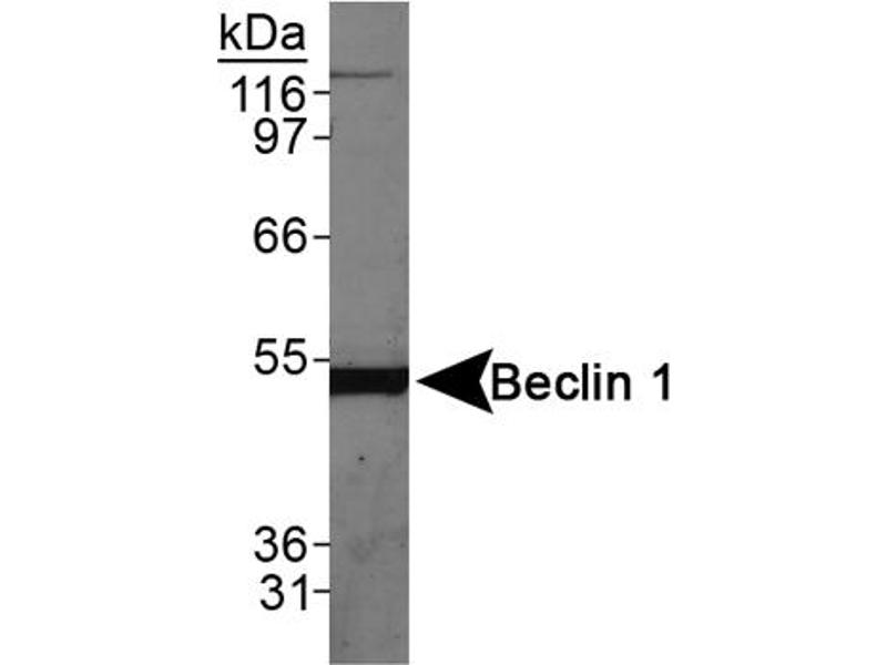 Western Blotting (WB) image for anti-Beclin 1 antibody (Beclin 1, Autophagy Related) (AA 150-300) (ABIN259945)
