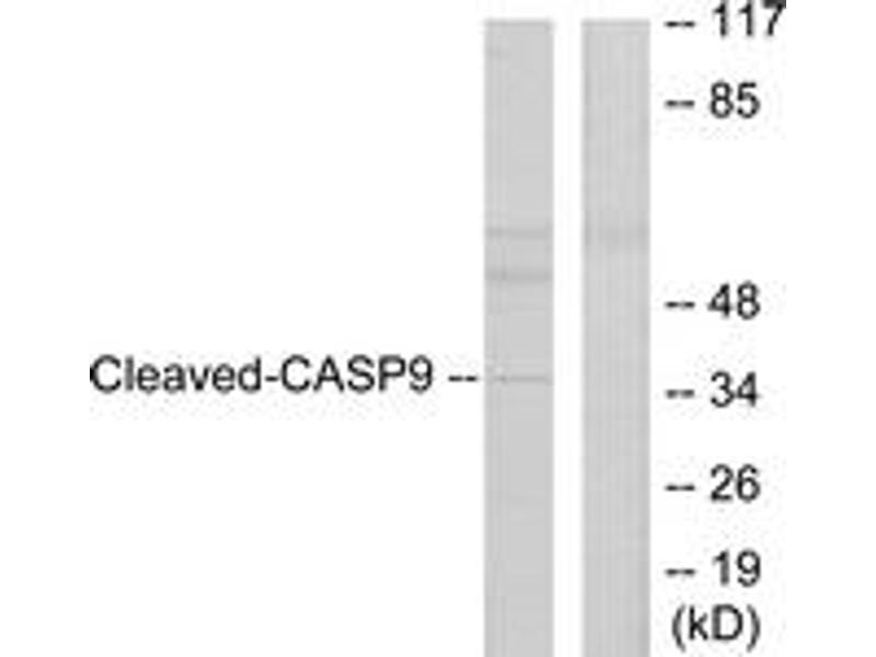 Western Blotting (WB) image for anti-Caspase 9 antibody (Caspase 9, Apoptosis-Related Cysteine Peptidase) (Cleaved-Asp330) (ABIN1536088)