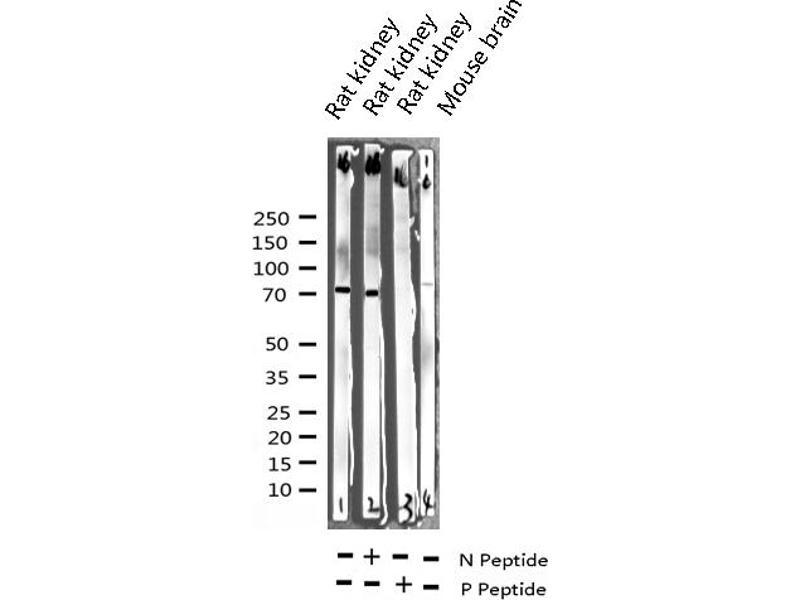 Western Blotting (WB) image for anti-V-Raf-1 Murine Leukemia Viral Oncogene Homolog 1 (RAF1) (pSer259) antibody (ABIN6256220)