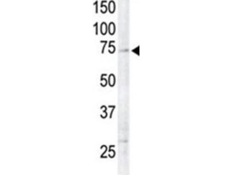 Western Blotting (WB) image for anti-Ribosomal Protein S6 Kinase, 90kDa, Polypeptide 6 (RPS6KA6) antibody (ABIN3003591)
