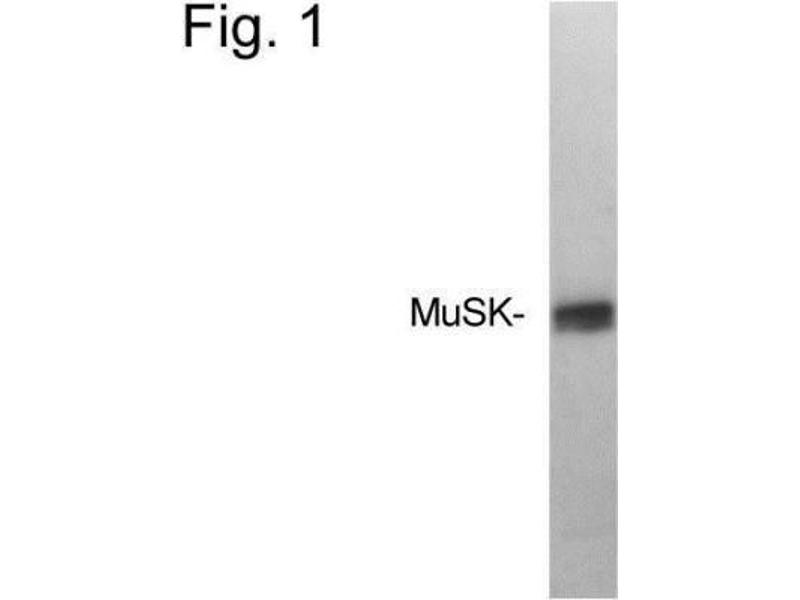 Western Blotting (WB) image for anti-MUSK antibody (Muscle, Skeletal, Receptor Tyrosine Kinase) (ABIN267349)