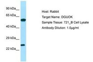 Image no. 1 for anti-Deoxyguanosine Kinase (DGUOK) (C-Term) antibody (ABIN6749986)