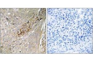 Image no. 1 for anti-Taurine Transporter (TAUT) (AA 561-610) antibody (ABIN1535374)
