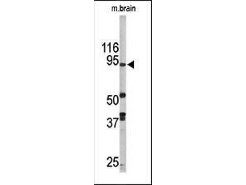 Western Blotting (WB) image for anti-Lysine (K)-Specific Demethylase 1A (KDM1A) (AA 108-142), (N-Term) antibody (ABIN388021)