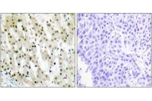 Image no. 1 for anti-Heterogeneous Nuclear Ribonucleoprotein A1 (HNRNPA1) (AA 51-100) antibody (ABIN1533600)