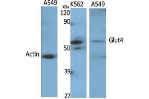 Western Blotting (WB) image for anti-Solute Carrier Family 2 (Facilitated Glucose Transporter), Member 4 (SLC2A4) (Internal Region) antibody (ABIN3184812)