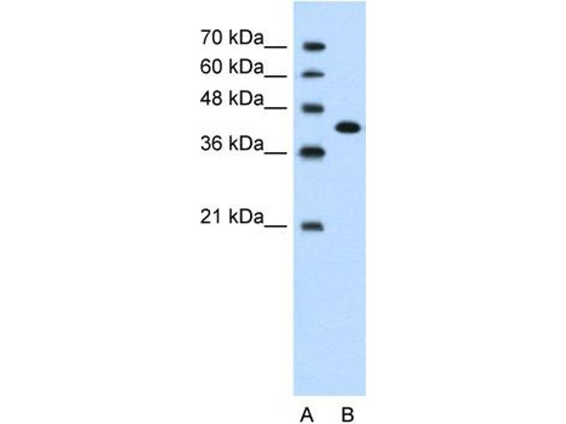 Western Blotting (WB) image for anti-Carcinoembryonic Antigen-Related Cell Adhesion Molecule 6 (Non-Specific Cross Reacting Antigen) (CEACAM6) (Middle Region) antibody (ABIN310166)