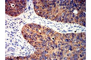 Image no. 9 for anti-BCL2-Like 2 (BCL2L2) (AA 6-118) antibody (ABIN5611241)