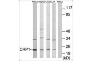 Image no. 2 for anti-Cysteine and Glycine-Rich Protein 1 (CSRP1) (Internal Region) antibody (ABIN1449689)