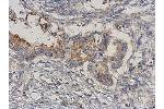 Immunohistochemistry (Paraffin-embedded Sections) (IHC (p)) image for anti-MAP3K3 antibody (Mitogen-Activated Protein Kinase Kinase Kinase 3) (Center) (ABIN4333539)