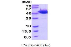 Image no. 1 for 8-Oxoguanine DNA Glycosylase (OGG1) (AA 1-345) protein (His tag) (ABIN6388043)