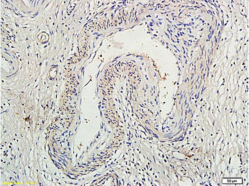 Immunohistochemistry (IHC) image for anti-SOCS1 antibody (Suppressor of Cytokine Signaling 1) (AA 160-211) (ABIN725135)