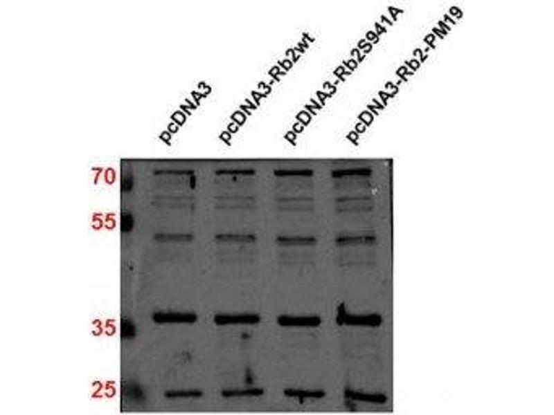 Western Blotting (WB) image for anti-CDKN1B antibody (Cyclin-Dependent Kinase Inhibitor 1B (p27, Kip1)) (ABIN269609)